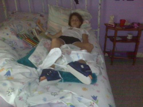 Maddie recovering from foot surgery_10.JPG